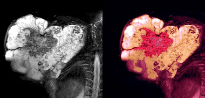 Continúan los desafíos de los tumores tipo sarcoma de tejido blando para la oncología científica