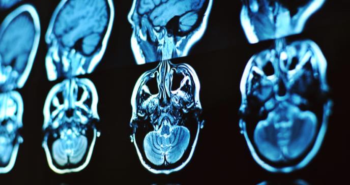 La rara enfermedad que paraliza los músculos de los niños y desconcierta a los médicos