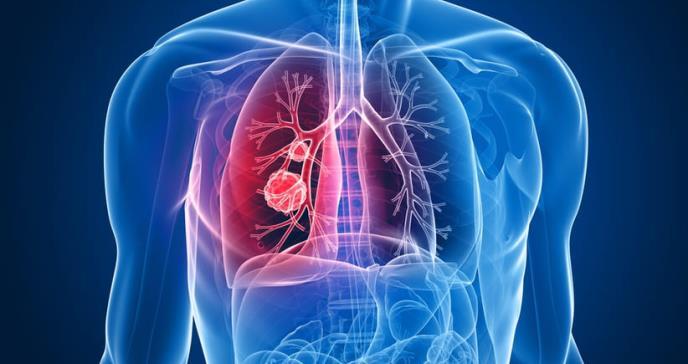 Cáncer de pulmón: ¿quiénes podrían padecer esta enfermedad?