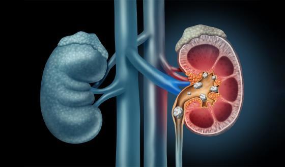 Cuáles son los tipos de cálculos en el riñón y qué puedes hacer para prevenirlos
