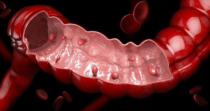 El consumo de antibióticos puede aumentar el riesgo de cáncer de colon